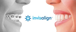Nicolas A. Ravon DDS MSD offer Invisalign Braces