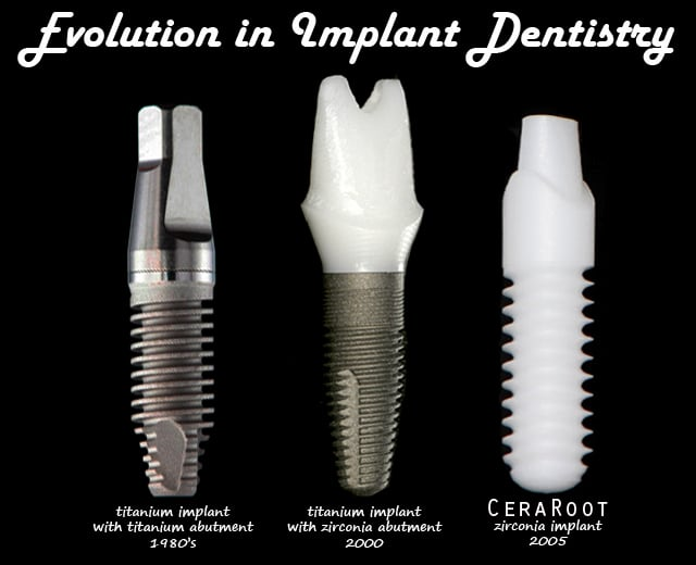 CeraRoot Zirconia Dental Implants