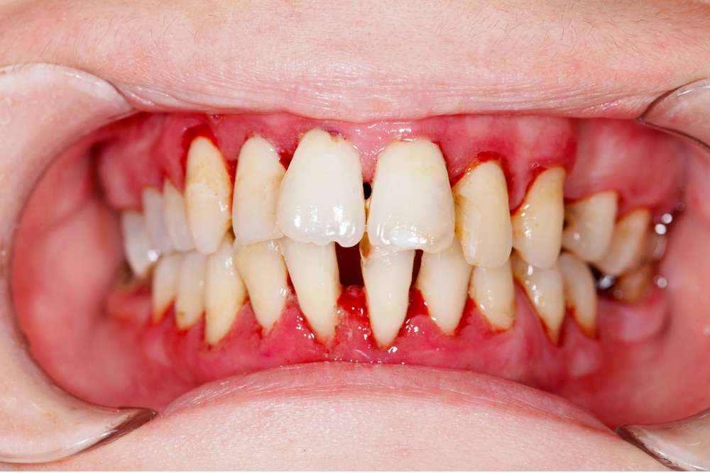 gum disease caused by poor oral hygiene
